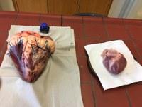 Sezierung eines Herzens